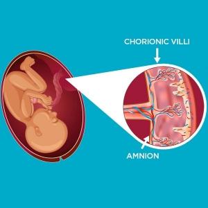 Amnion-CellsGenetics-Cells4life